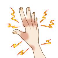 手のしびれのサムネイル画像